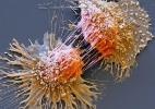 O que é a Síndrome de Lynch, a rara condição genética que pode ser a causa de câncer hereditário (Foto: SPL)