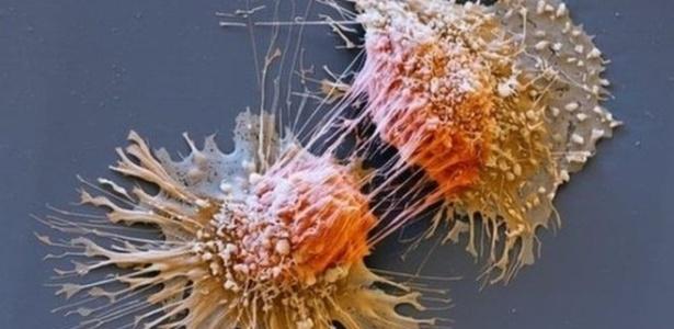 Pacientes com Síndrome de Lynch têm risco maior de desenvolver vários tipos de câncer