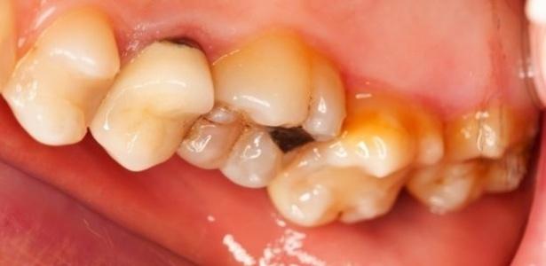 Erosão dentária pode causar perda de dentes - Getty Image