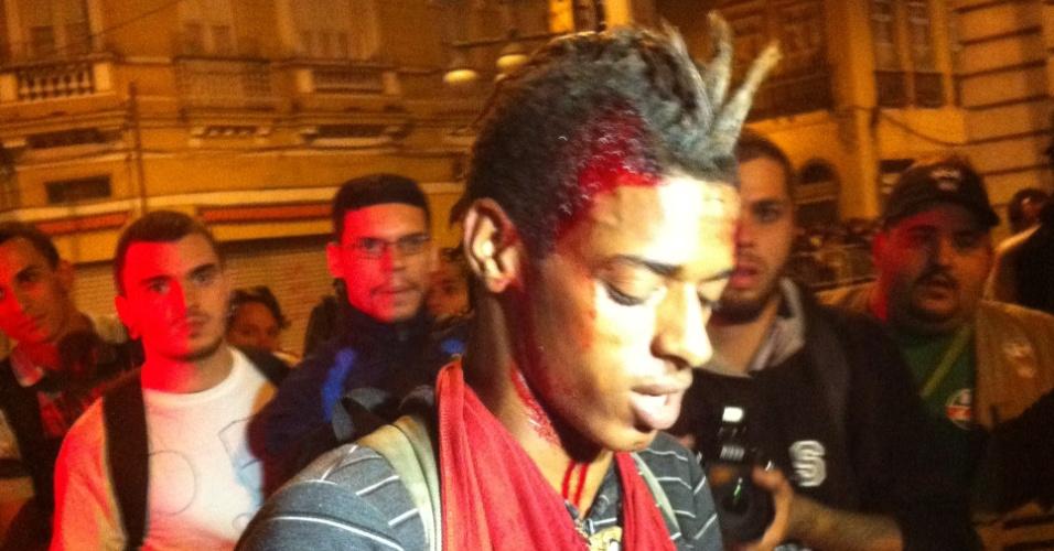 17.jun.2013 - Igor Andrade, 19, afirma que uma pedrada recebida durante manifestação nos arredores da Alerj (Assembleia Legislativa do Rio de Janeiro), no centro da capital fluminense, na noite desta segunda-feira, lhe causou um ferimento na cabeça
