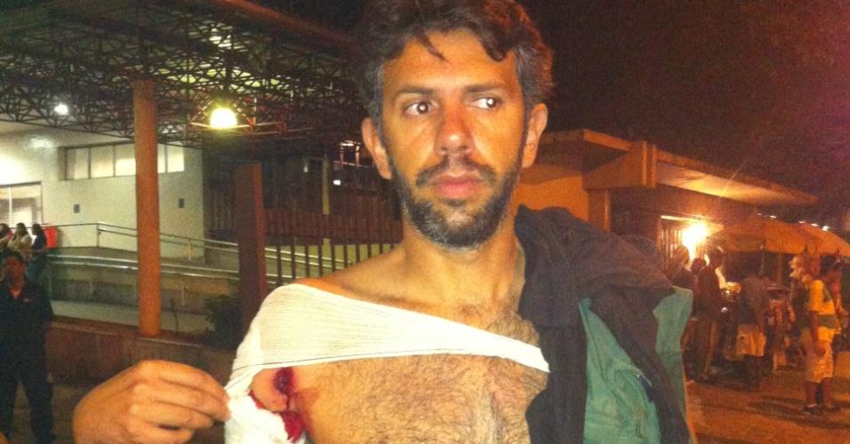 """20.jun.2013 - O pesquisador Marcelo Amorim, 36, contou à reportagem do UOL que tomou um tiro de bala de borracha na axila esquerda, em frente a Prefeitura do Rio de Janeiro. Ele foi atendido no Hospital Municipal Souza Aguiar. """"A Polícia estava atirando a esmo, jogando caveirão em cima das pessoas. Vou fazer corpo de delito e entrar com uma ação contra o Estado"""", disse"""