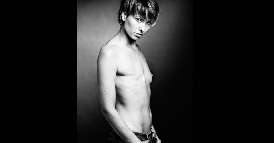 Paulina (acima) já havia posado para Jay. E quando foi diagnosticada com câncer de mama aos 29 anos, o fotógrafo sentiu que era preciso fotografá-la de novo, para mostrar a cicatriz da mastectomia. Paulina foi a primeira foto do que depois se transformaria no projeto 'The Scar'. (© David Jay/The SCAR Project)
