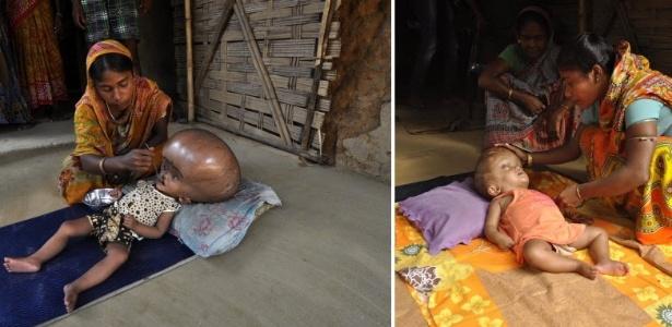 03.08.2013: Esta montagem de duas imagens mostra à esquerda, em foto tirada em 13 de abril deste ano, Fatima Khatun, 25 anos, alimentando sua filha de 18 meses, Roona Begum, que sofre de hidrocefalia, acúmulo anormal e excessivo de líquor dentro dos ventrículos, em sua casa em Jirania, no nordeste do estado indiano de Tripura. A outra foto mostra a mãe e Roona agora, com 21 meses, após seu retorno a casa em 2 de agosto, depois de ter tido alta do hospital nos arredores de Nova Delhi. Médicos permitiram que o bebê indiano fosse para casa depois de quase quatro meses de tratamento para tratar de sua doença rara que praticamente dobrou o tamanho de sua cabeça. Roona e seus pais deixaram Nova Delhi e retornaram para casa, uma região remota do nordeste da Índia, após os cirurgiões declararem que sua saúde tinha melhorado significativamente