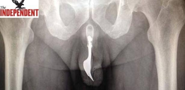 Imagem do raio-x tirado antes da cirurgia em que é possível ver o garfo dentro da uretra do paciente - Reprodução/The Independent