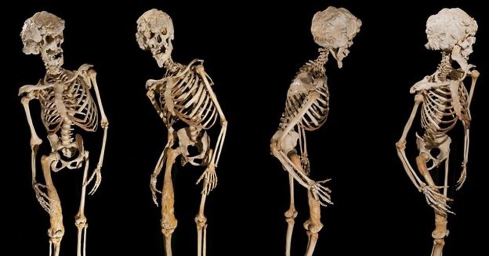 """3.set.2013 - Ironicamente, a preservação do esqueleto de Merrick é o que tem causado um dos maiores problemas para que se descubram os segredos do """"homem elefante"""". """"O esqueleto, que tem bem mais do que 100 anos agora, é na verdade muito limpo"""", conta o professor Richard Trembath, vice-diretor do departamento de saúde da Queen Mary University of London, que também é o responsável pela guarda do material. """"Isso representa um problema significativo. Em várias ocasiões ao longo dos anos, o esqueleto foi embranquecido com cloro no processo de preservação. Cloro não é um bom componente químico para se expor o DNA. Isso gerou um problema extra para conseguirmos extrair quantidades suficientes de DNA com o objetivo de fazermos o sequenciamento (genético)"""", explica Trembath"""