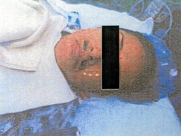 Uma paciente norte-americana está processando um hospital da Califórnia depois de descobrir que um anestesista desenhou um bigode nela enquanto estava inconsciente