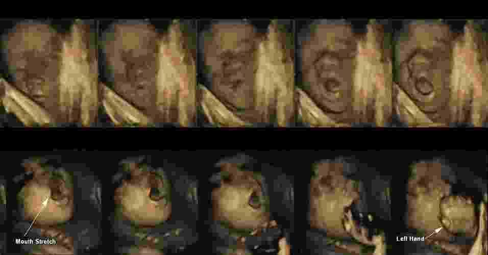 7.out.2013 - Sequência de imagens 4D mostra fetos reagindo ao toque ainda no útero: no topo, feto de 25 semanas abre a boca depois de tocar parte lateral da cabeça com sua mão. Mas, quando atinge 32 semanas de gestação, o feto já consegue antecipar seu movimento e abrir a boca antes de levantar a mão esquerda - Nadja Reissland/Durham University