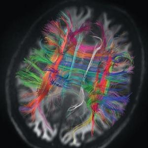 Os caminhos de fibra de um cérebro humano mostram como as principais vias dos lobos frontais se interligam, organizando-se em ângulos retos. - Center for Biomedical Imaging, Massachusetts General Hospital