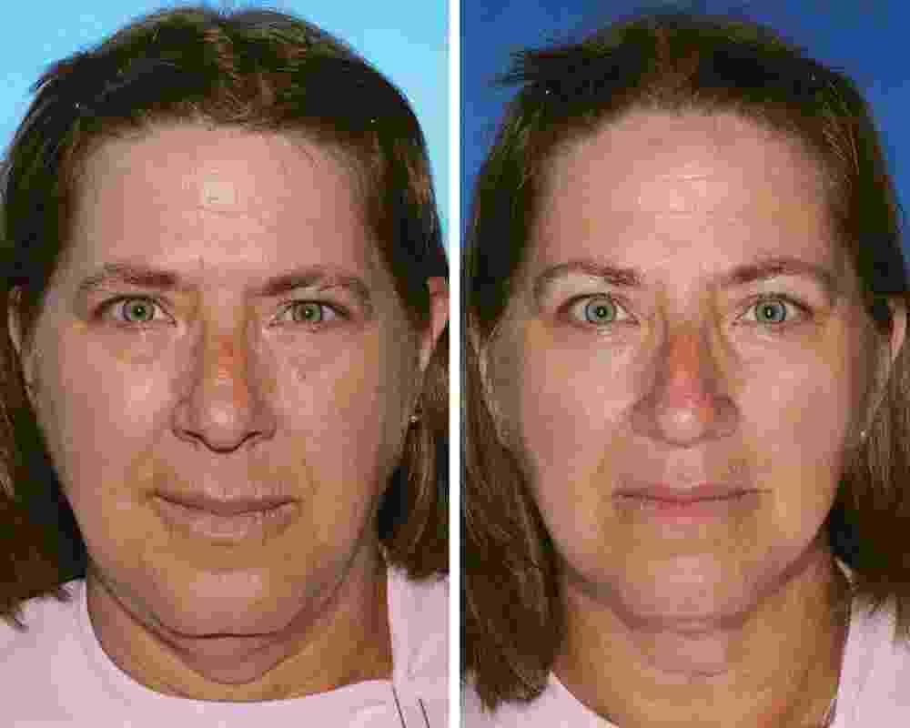 Estudo compara irmãos gêmeos e comprova que fumar envelhece - Reprodução/Plastic and Reconstructive Surgery