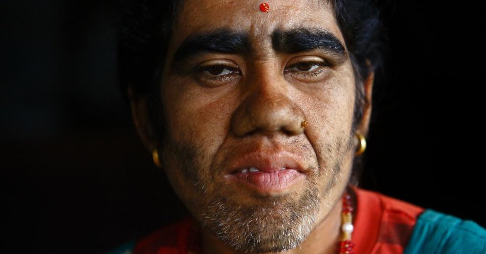 6.nov.2013 - Devi Budhathoki, 38, é fotografada antes de passar por tratamento de remoção de pelos com laser em hospital de Katmandu, no Nepal