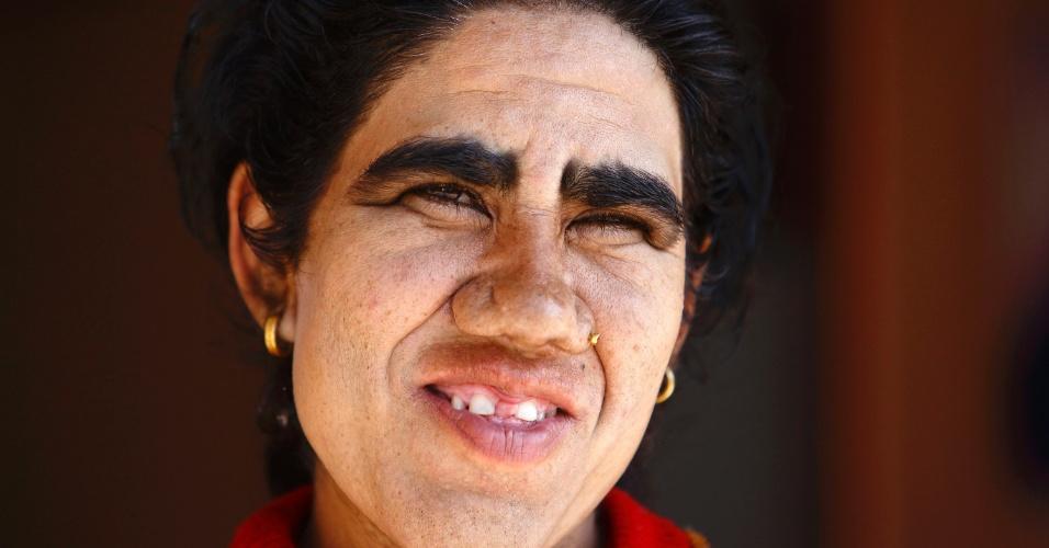 6.nov.2013 - Devi Budhathoki, 38, posa para foto depois de passar por remoção de pelos a laser