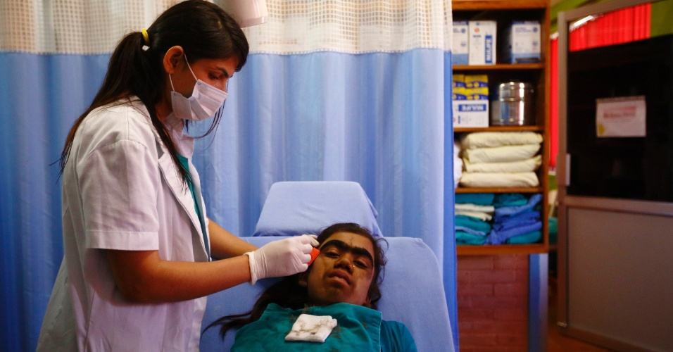6.nov.2013 - Manjura Budhathoki, 14, tem os pelos do rosto removidos com gilete antes de passar por tratamento a laser no hospital Dhulikhe, na periferia de Katmandu, no Nepal