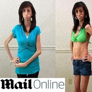 Lizzie Velasquez, 24, sofreu muito preconceito na escola e na internet devido à sua aparência