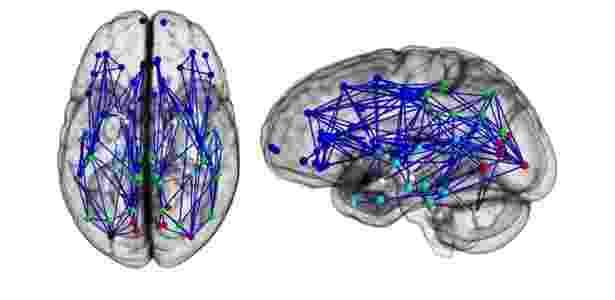 Conexões cerebrais mostram maiores ligações da frente para trás e em um hemisfério nos homens (em cima) e da esquerda para direita nas mulheres (abaixo), aponta estudo publicado na Pnas - Ragini Verma, Ph.D., Proceedings of National Academy of Sciences