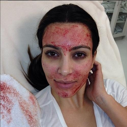 10.mar.2013 - A socialite e empresária Kim Kardashian, adepta aos selfies, publicou uma foto que mostra um tratamento feito supostamente com sangue. Ela usou a hashtag ''VampireFacial'', algo como ''tratamento facial vampiresco''