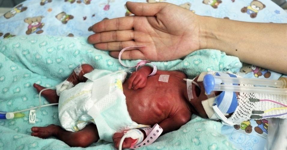 12.dez.2013 - Bebê prematuro na incubadora de um hospital na província de Shaanxi, na China. De acordo com a mídia local, a mãe deu à luz depois de apenas 25 semanas de gestação. Ele nasceu com 760g e terá de ficar de três a quatro meses no hospital
