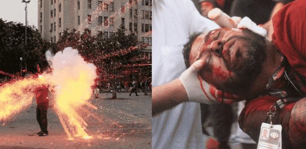 Cinegrafista foi ferido na cabeça por um artefato explosivo e perdeu parte da orelha - Kátia Carvalho / Parceira / Agência O Globo