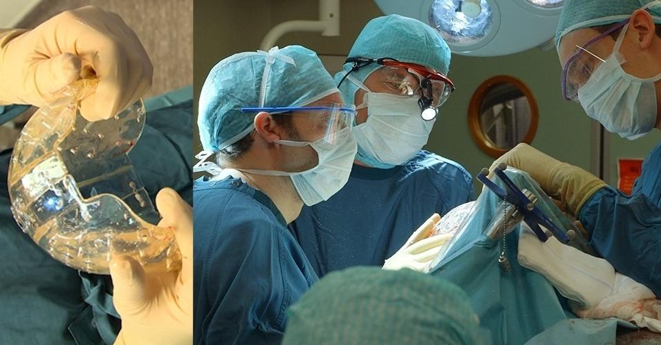 28.mar.2014- Mulher holandesa de 22 anos foi a primeira paciente do mundo a receber um implante craniano completo feito de plástico por uma impressora 3D. A mulher tem um doença rara que deixava seu crânio com espessura muito maior do que o normal, o que a colocava em perigo de morte