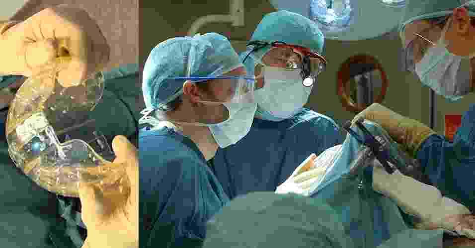 28.mar.2014- Mulher holandesa de 22 anos foi a primeira paciente do mundo a receber um implante craniano completo feito de plástico por uma impressora 3D. A mulher tem um doença rara que deixava seu crânio com espessura muito maior do que o normal, o que a colocava em perigo de morte - EFE