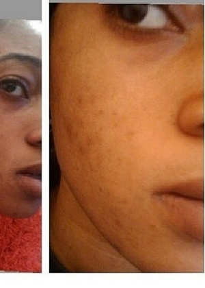 """11.abr.2014 - Foto compartilhada pelo Instragram do cosmético """"Whitenicious"""", desenvolvido pela cantora nigeriana Dencia, divulga clareamento de manchas escuras de consumidora após aplicações do produto"""