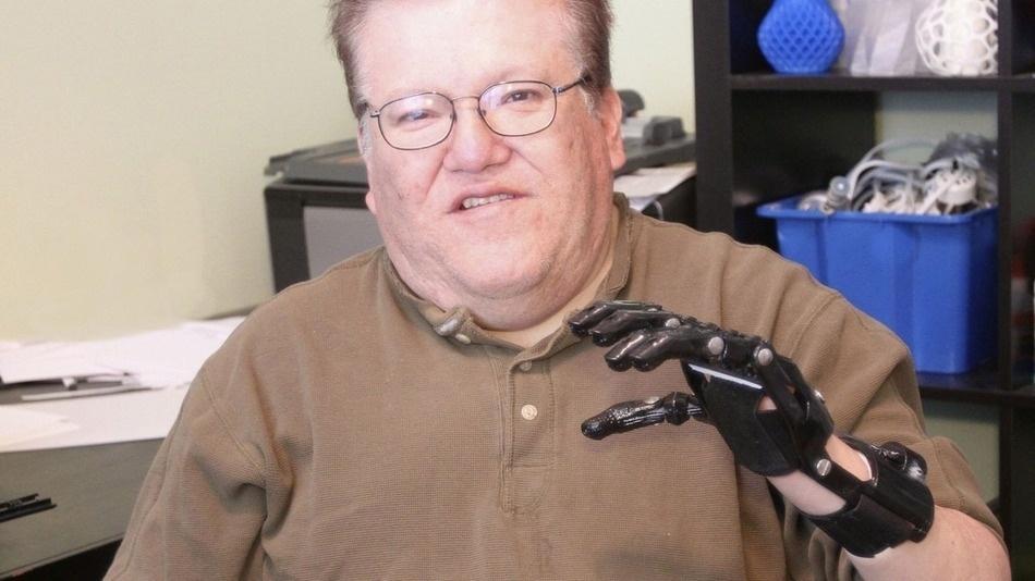 O norte-americano Jose Delgado, 53, ganhou uma prótese criada com uma impressora 3D feita por Jeremy Simon, empreendedor da 3D Universe. Ele nasceu sem uma parte da mão esquerda e usava uma prótese mioelétrica (que é acionada com impulsos elétricos), que custou US$ 42 mil (R$ 93 mil). Porém, ele passava por uma série de problemas como não conseguir dirigir ou usar a prótese em dias frios (segundo Delgado, ela fica imóvel). Já a prótese impressa em 3D custou R$ 50 (R$ 111) e funciona de forma totalmente mecânica. Delgado diz que consegue dobrar todos os dedos da prótese e ter controles mais precisos