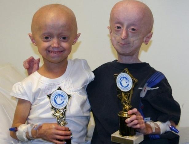 Resultado de imagem para progeria doença