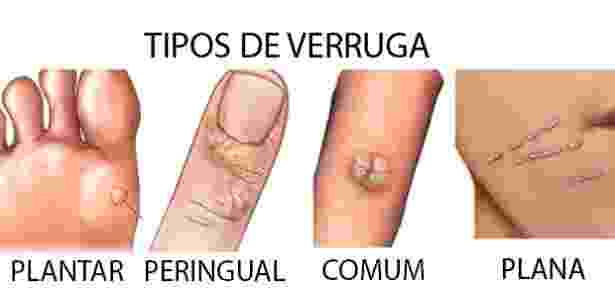 Ilustração apresenta alguns dos tipos de verruga existentes, como a plantar, a peringual e a plana - Reprodução - Reprodução