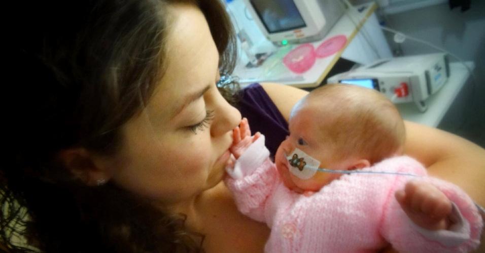 11.jul.2014 - Em 1 º de dezembro de 2013, Jenny Little, começou a sentir dores e procurou um hospital na região onde vivem em West Midlands, na Inglaterra. A pequena Daisy nasceu 45 minutos depois pesando apenas 850 gramas
