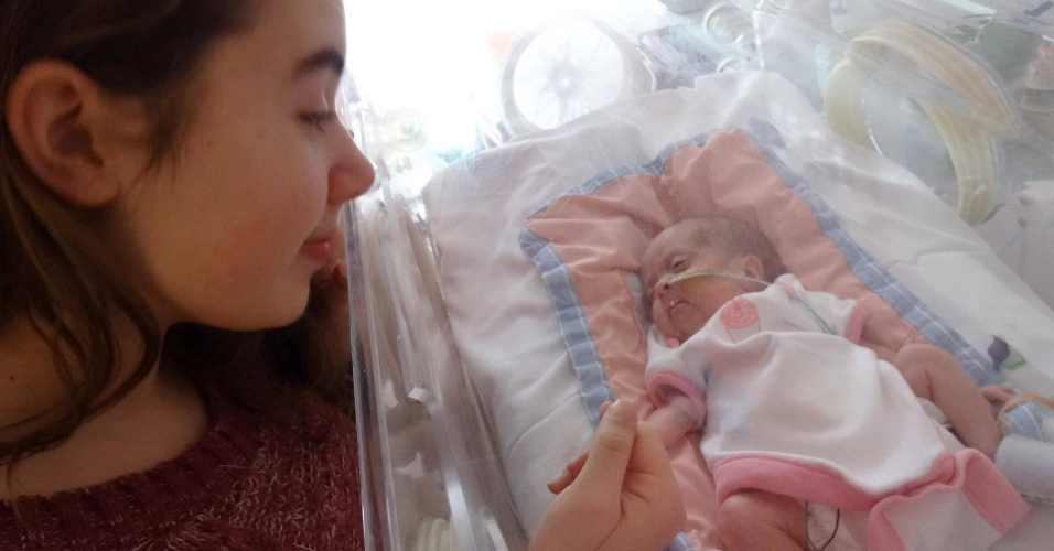 11.jul.2014 -Em 1 º de dezembro de 2013, Jenny Little, começou a sentir dores e procurou um hospital na região onde vivem em West Midlands, na Inglaterra. A pequena Daisy nasceu 45 minutos depois pesando apenas 850 gramas