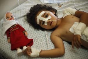 14.jul.2014 - A palestina Shayma Al-Masri, 4, descansa ao lado de sua boneca em hospital de Gaza. Shayma foi ferida durante um ataque aéreo que matou sua mãe e seus dois irmãos