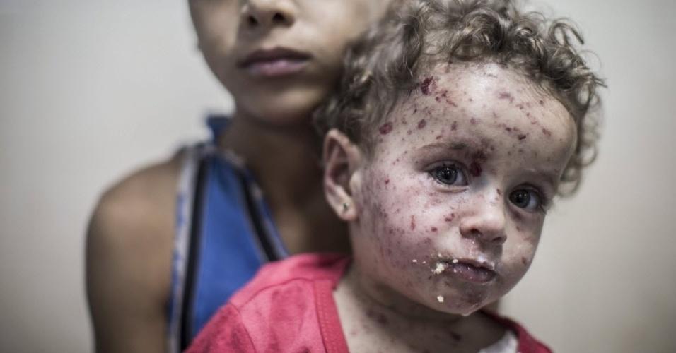 21.jul.2014 - Menino palestino de 9 anos segura a irmã de um ano e meio na sala de emergência do hospital Shifa, na faixa de Gaza. A menina foi ferida por estilhaços após um tanque israelense disparar contra sua casa no bairro Shuja'iyya