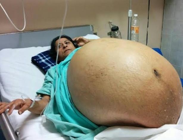 Mercedes Talamantes Victorio, 51, carregava um tumor de 60 quilos e 200 gramas