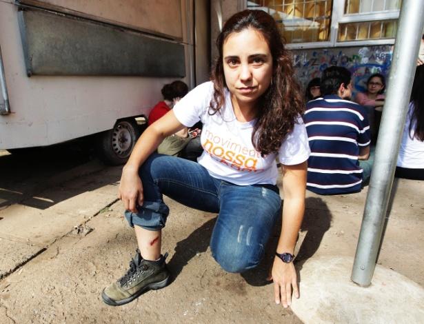 20.ago.2014 - Funcionária da USP (Universidade de São Paulo) exibe ferimento causado por estilhaço de bombas de gás usadas pela PM durante confronto com manifestantes