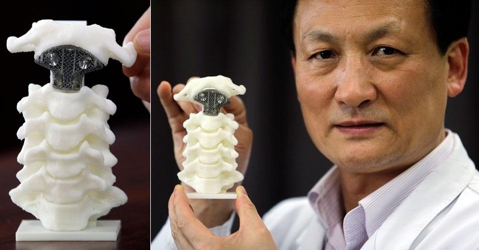 Médico chinês Liu Zhongjun mostra uma vértebra (cinza) produzida com impressora 3D, que foi implantada em um paciente de 12 anos com câncer nos ossos. Segundo o médico da Universidade de Pequim, esta foi a primeira iniciativa deste tipo em cirurgias de coluna - tradicionalmente, a vértebra seria substituída por uma peça de titânio. Segundo a ''Forbes'', a peça produzida em 3D tem pó de titânio em sua composição