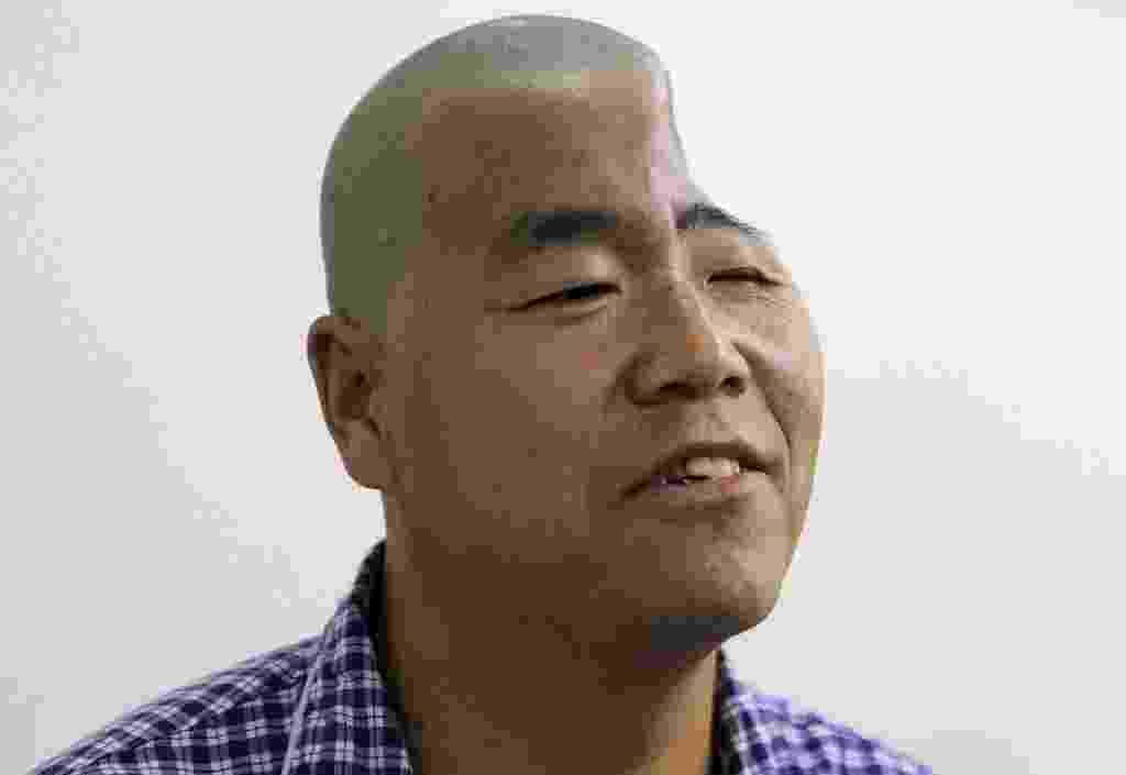 28.ago.2014 - Um paciente apelidado de Hu passa por um exame médico antes de uma cirurgia em um hospital em Xi'an, na província de Shaanxi, na China, nesta quarta-feira (27). O hospital está se preparando para colocar uma tela de titânio produzida por uma impressora 3D na cabeça de Hu, para ajudá-lo a reconstruir a forma de seu crânio. Hu foi ferido depois que ele caiu do terceiro andar de um prédio, de acordo com a imprensa local - China Daily/Reuters