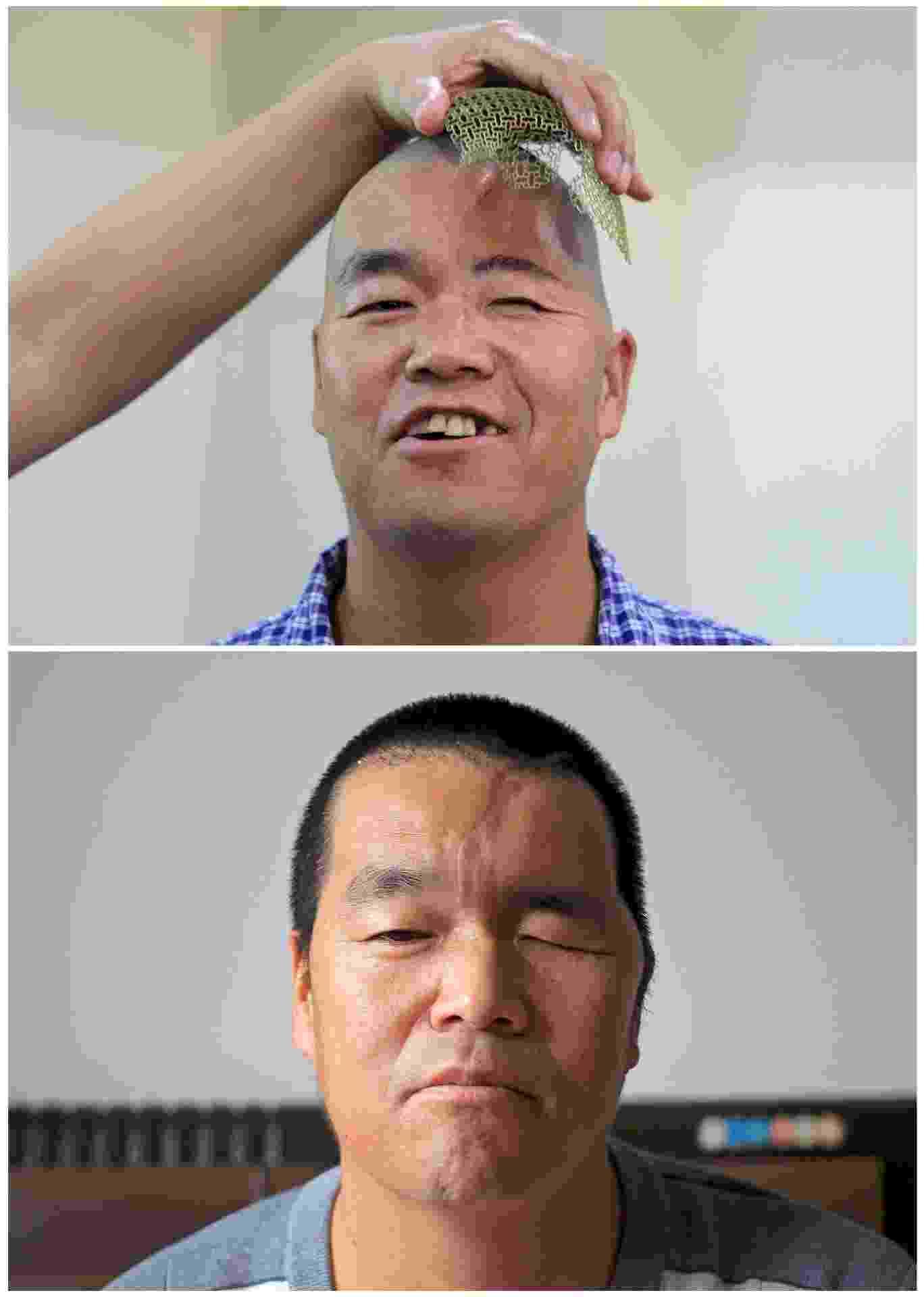 24.set.2014 - O fazendeiro chinês de 46 anos, conhecido apenas como Hu, recebeu uma prótese de titânio na cabeça durante operação de três horas e meia em um hospital em Xian, na província de Shaanxi, na China.  A operação ocorreu em 28 de agosto e nesta quarta-feira (24) foi mostrado em fotos os resultados da cirurgia - China Daily/Reuters