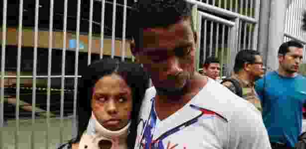 8.nov.2014 - A candidata usa um colar cervical por conta de um atropelamento sofrido em julho deste ano - Junior Lago/UOL