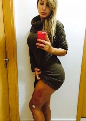 Em julho, Andressa Urach mostrou o problema que teve com o hidrogel na perna