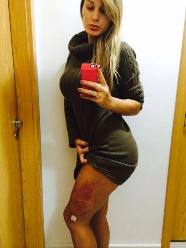 2.nov.2014 - Em julho, Andressa Urach mostrou o problema que teve com o hidrogel na perna