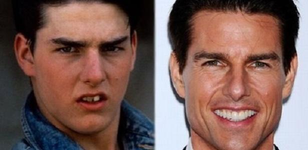 Diferenças nos dentes do ator Tom Cruise inspiraram pesquisa de dentista brasileiro - Reprodução