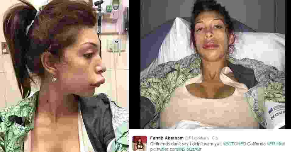 6.jan.2015 -  A atriz pornô Farrah Abraham, que estrelou o reality show ''Teen Mom'' nos Estados Unidos, ficou com os lábios deformados depois de um procedimento estético para aumentá-los. De acordo com o site ''TMZ'', Farrah teria sofrido uma reação alérgica ao anestésico aplicado no local. A própria atriz publicou no Twitter as imagens acima com a legenda ''Garotas, não digam que não alertei vocês'', aparentemente arrependida - Reprodução/Twitter/@F1abraham