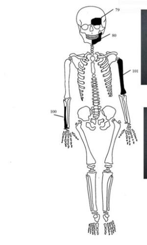 19.jan.2015 - Os ossos do esqueleto de um bebê foi de foi descoberto em um sítio de uma escavação arqueológica na cidade de Amphipolis no norte da Grécia. O Ministério da Cultura grego anunciou nesta segunda-feira que uma grande tumba antiga que acreditava-se poder abrigar os restos mortais de Alexandre o Grande contém ossos de uma mulher, um bebê recém-nascido e dois homens