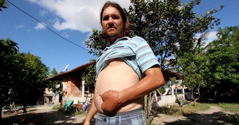 20.jan.2015 - Após a cirurgia, Ângelo teve de ficar por 42 dias com a mão costurada à barriga, cuja pele daria novo formato à mão
