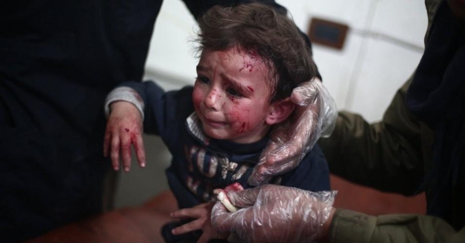 22.jan.2015 - Uma criança síria ferida recebe tratamento em um hospital improvisado na área rebelde de Douma, a nordeste da capitaldo país, Damasco, após um ataque aéreo realizado por forças leais ao ditador, Bashar al-Assad