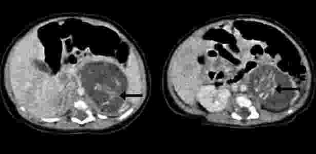 Tomografia mostra a espinha dorsal dos dois fetos, encontrados no ventre de um bebê recém-nascido, em Hong Kong, em 2010 - Divulgação/ Hkmj.org