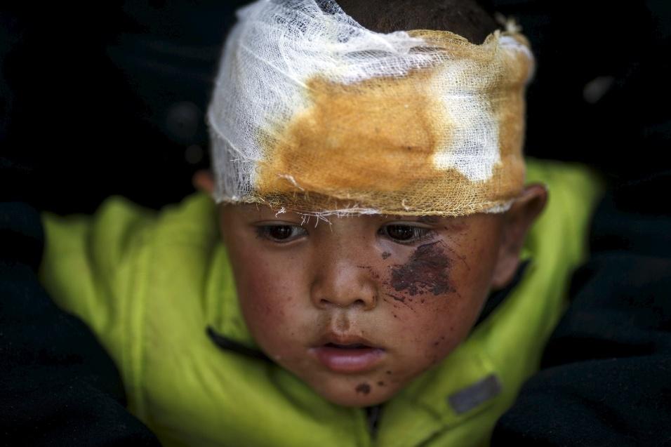 27.abr.2015 - Abhishek Tamang, 4, recebe tratamento médico no Hospital Dhading, em Dhading, no Nepal, depois de ficar ferido em decorrência dos fortes terremotos que atingiram o país no sábado (25). O maior deles atingiu magnitude de 7,8 na Escala Richter, deixando milhares de mortos e desabrigados