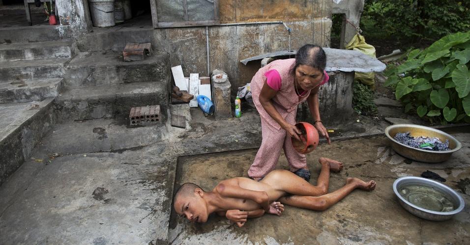 11.abr.2015 -Tang Thi Thang dá banho em seu filho Doan Van Quy do lado de fora de casa em Truc Ly,  na província de Quang Binh, no Vietnã. O pai de Doan, um soldado que serviu na Guerra do Vietnã, viveu muitos anos em áreas contaminadas pelo agente laranja. Dois de seus filhos nasceram com graves problemas de saúde