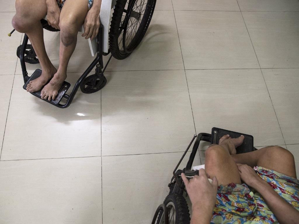 12.abr.2015 - Nguyen Thi Thiet (esq) and Nguyen Thi Phuoc, que sofrem de problemas mentais e físicos, descansam em cadeiras de roda na casa do irmão em Danang, no Vietnã. Segundo a Associação das Vítimas do Agente Laranja/Dioxina, o pai deles foi exposto ao agente laranja enquanto servia como motorista para o Exército do Vietnã do Sul