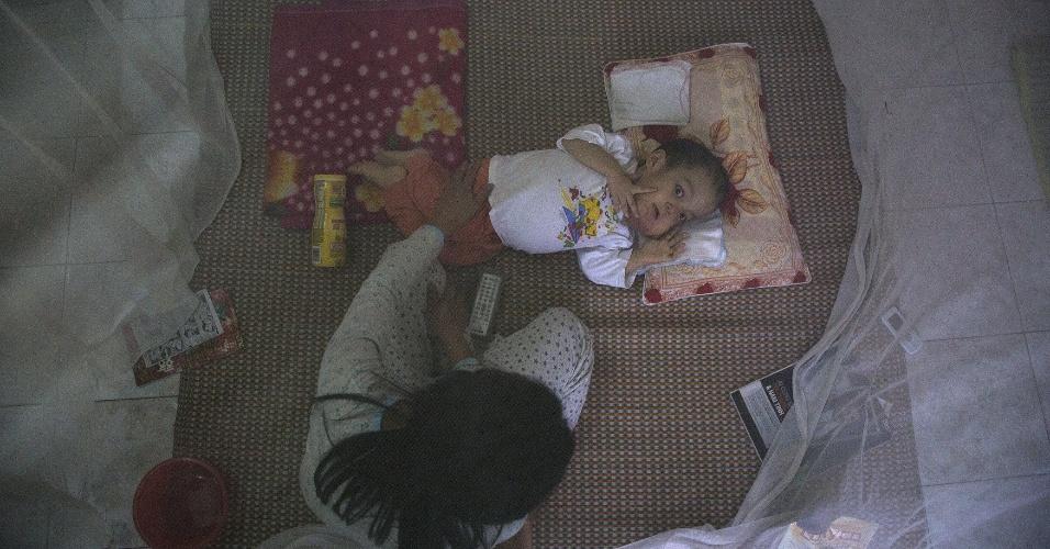 12.abr.2015 - Nguyen Van Tuan Tu, 7, é cuidado por um membro de sua família em sua casa próximo ao aeroporto de Danang, no Vietnã. Quando seu pai começou a trabalhar no aeroporto, em 1997, ele desconhecia os riscos associados ao agente laranja e coletou peixes e caramujos de um lago próximo, contaminado, para a alimentação da família. Seu primeiro filho morreu aos sete anos de vida. Ele tem uma filha saudável, nascida antes que ele começasse a trabalhar no aeroporto