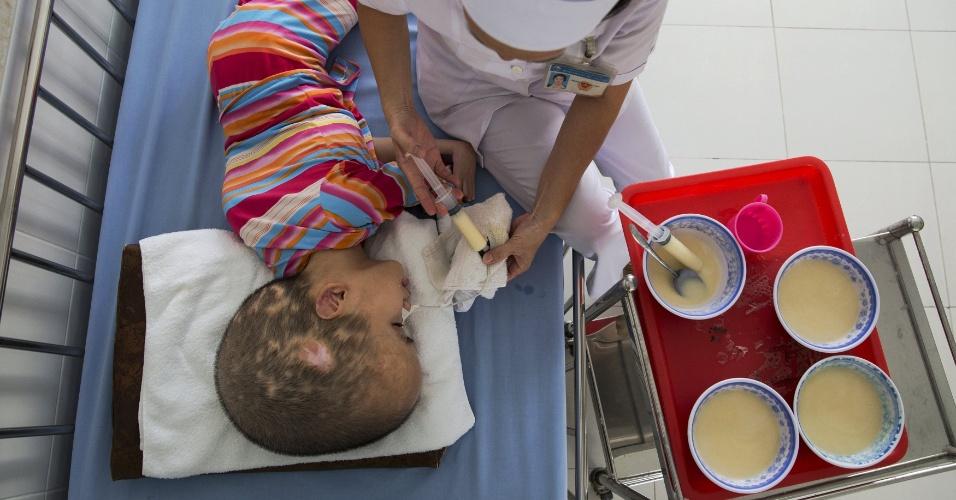 14.abr.2015 - Pham Thi Phuong Khanh é alimentado por enfermeira no hospital Tu Du, em Ho Chi Minh City (Saigon), no Vientã. Os pais da criança foram expostos ao agente laranja durante a Guerra do Vientã. Segundo o hospital, mais de dois-terços dos 60 pacientes são de áreas que foram bombardeadas com o agente